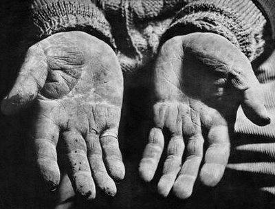 CAPÍTULO I: Cuando el corazón es un bosquejo del verso que se pule en el amor humano. Pobre-manos